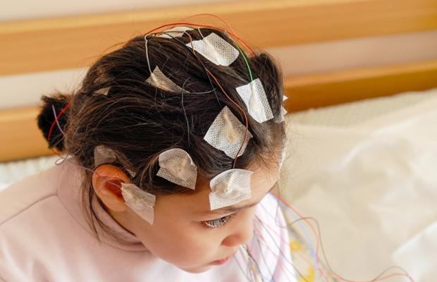 Badanie EEG u dzieci z padaczką